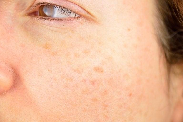 Die häufigsten Hautprobleme: Dunkle Flecken