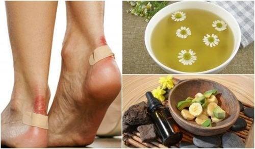 Blasen an den Füßen: 5 natürliche Mittel