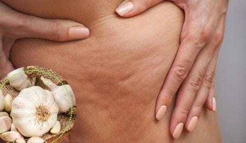 Mit diesen 5 Mitteln kannst du Cellulite behandeln