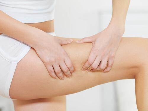 Cellulite behandeln und die Ursachen davon