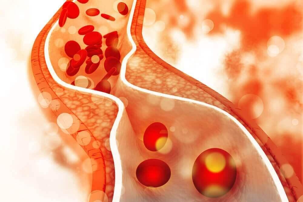 Diät-Fehler bei hohem Cholesterinspiegel: Blut