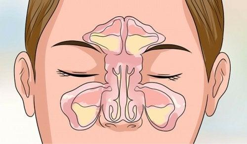 Feuchtigkeit gegen Nasenverstopfung