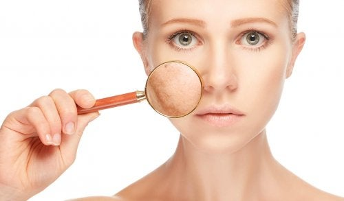 Hautflecken als Symptom für polyzystische Ovarien