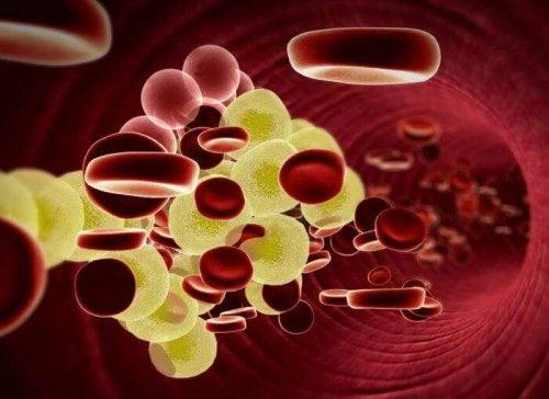 Kein Fleisch mehr und weniger Cholesterin