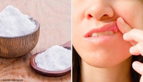 8 Heilmittel gegen Mundgeschwüre