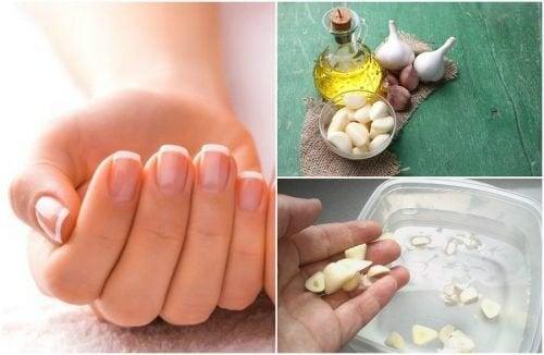 Schnelleres Wachstum der Fingernägel: 5 Tipps