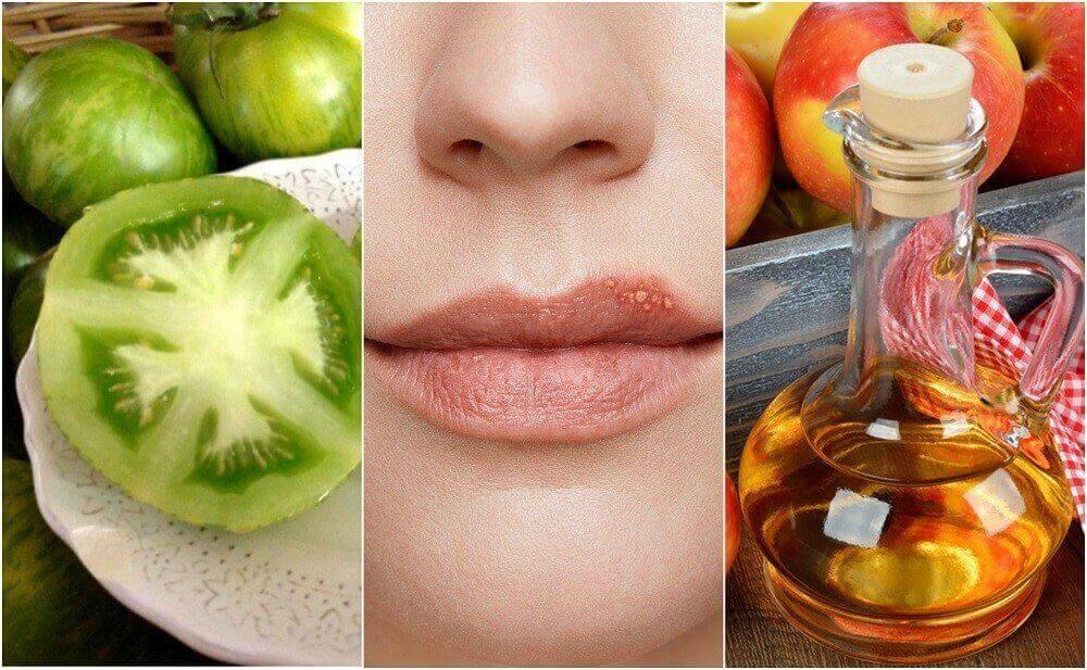 5 natürliche Heilmittel gegen Lippenherpes