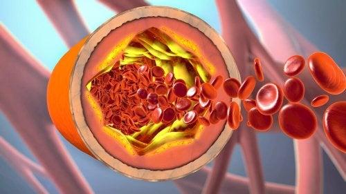 Nie mehr verstopfte Blutgefäße, versuche dieses natürliche Heilmittel aus Zimt und Kanariengras zur Reinigung der Arterien.