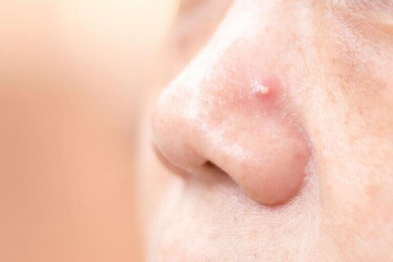4 Hausmittel gegen Pickel auf der Nase
