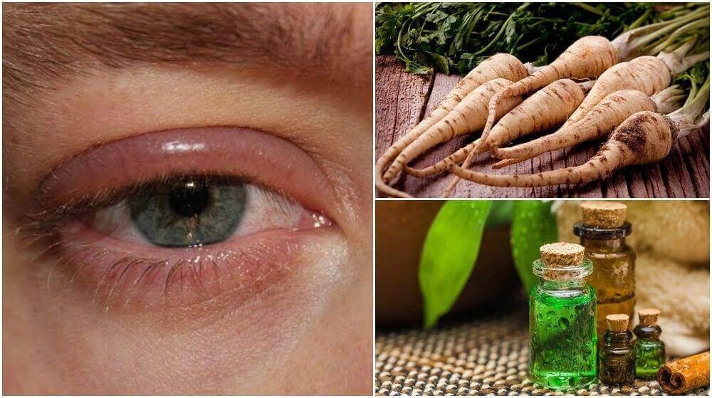 5 Hausmittel gegen geschwollene Augenlider
