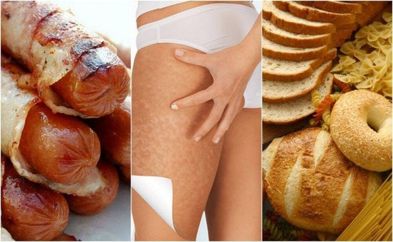 Diese Nahrungsmittel fördern Cellulite