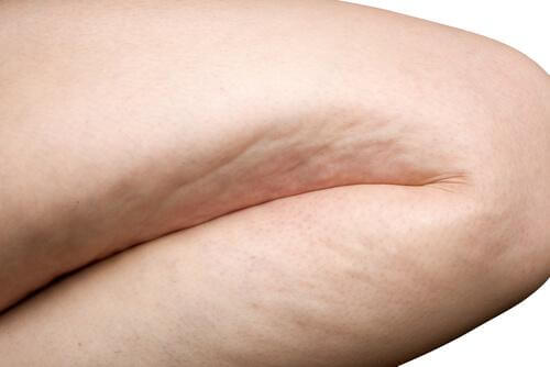 bestimmte Nahrungsmittel fördern Cellulite