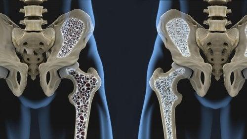 Osteoporose langfristig vorbeugen durch knochenfreundliche Ernährung