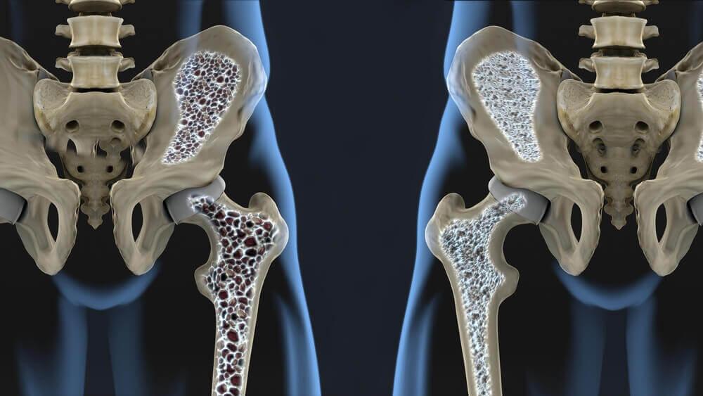So kannst du Osteoporose langfristig vorbeugen!