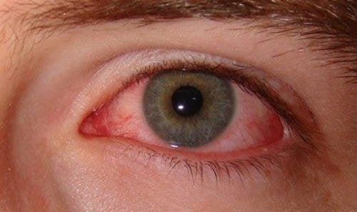 Rauchstopp um die Augen zu schützen.
