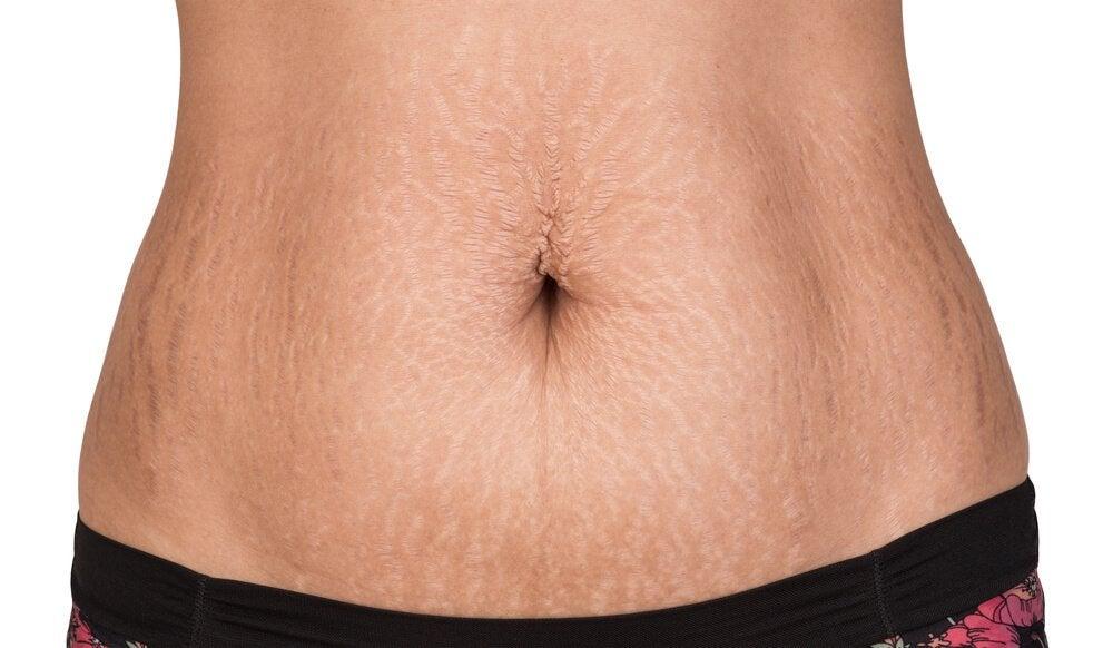 Was hilft gegen Dehnungsstreifen der Haut?