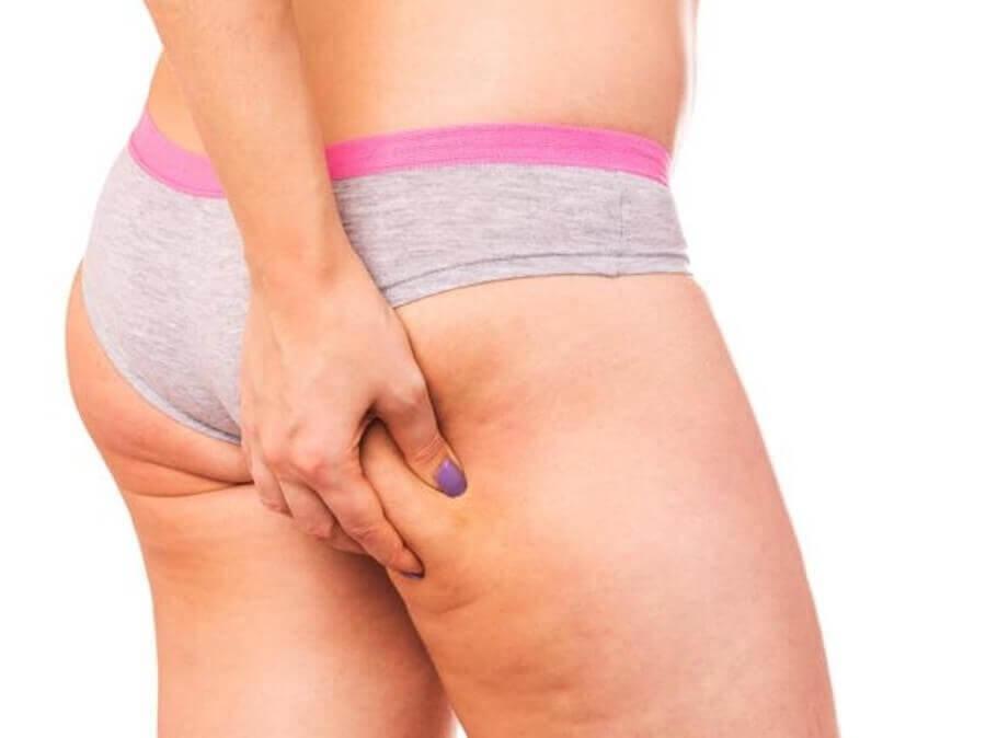 Cellulite verschlimmern: Oberschenkel