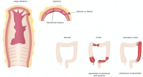Crohn-Krankheit und Darmentzündung