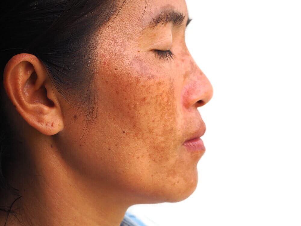 Hyperpigmentierung mit natürlicher Gesichtsmaske mildern