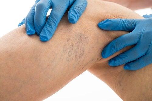 8 Methoden zur Behandlung von Krampfadern
