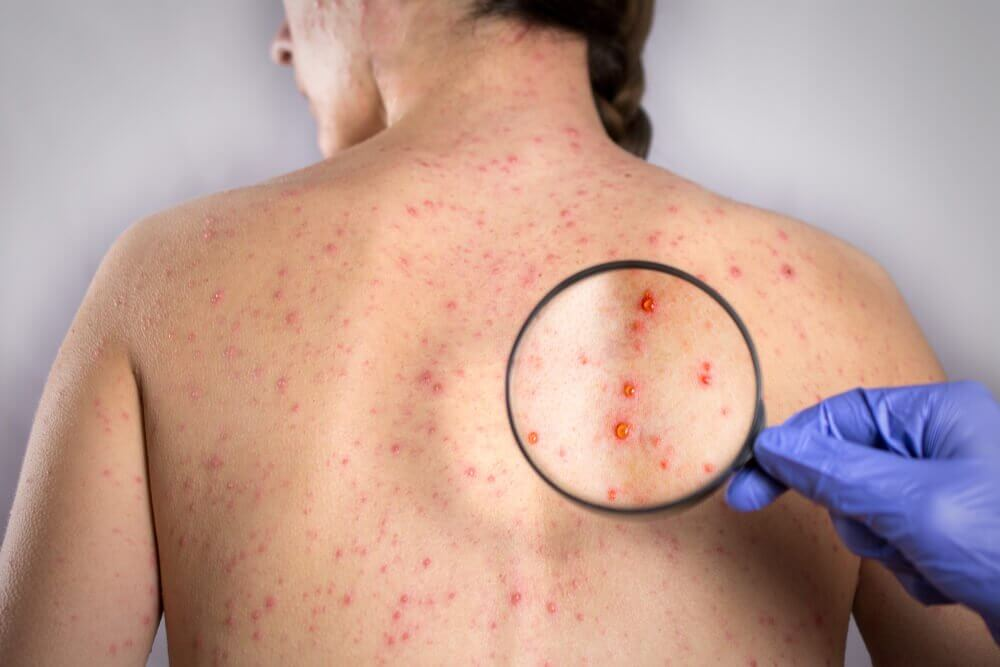 Fünf Naturheilmittel gegen Herpes am Rücken