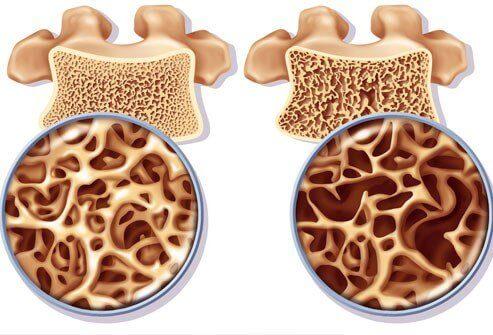 Kalziumhaltige Naturheilmittel und Vitamin K zur Vorbeugung von Osteoporose