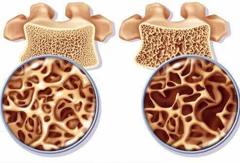 Kalziumreiche Naturheilmittel zur Vorbeugung von Osteoporose
