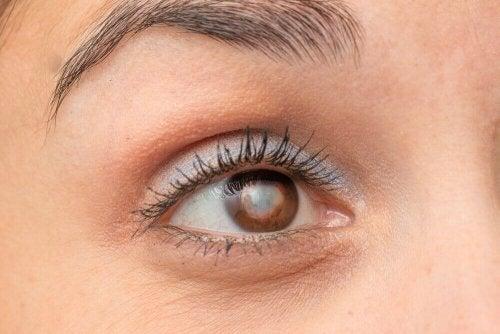 Die Vorteile von Karotten bei Augenproblemen