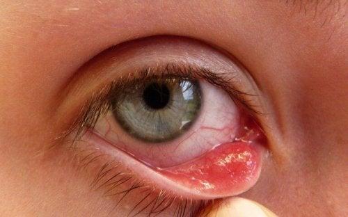 Gerstenkorn am Auge ist schmerzhaft