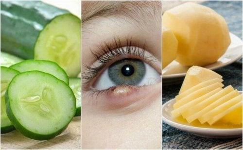 Gerstenkorn am Auge: Dise 5 Hausmittel helfen