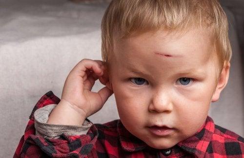 Mein Baby hat sich den Kopf gestoßen! Was tun?