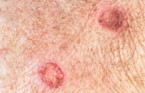 Leberflecke können Hautkrebs bilden