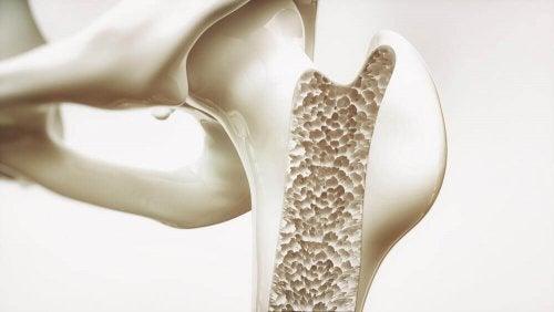 Mangel an Vitaminen schadet den Knochen