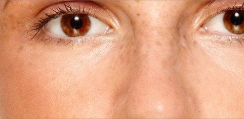 Wie vermindert man Hautflecken, die durch Hyperpigmentierung entstanden sind?