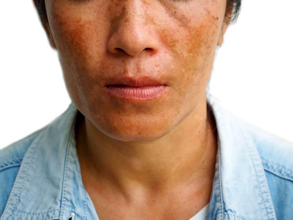 Hautflecken durch Hyperpigmentierung reduzieren: 3 Behandlungsmethoden