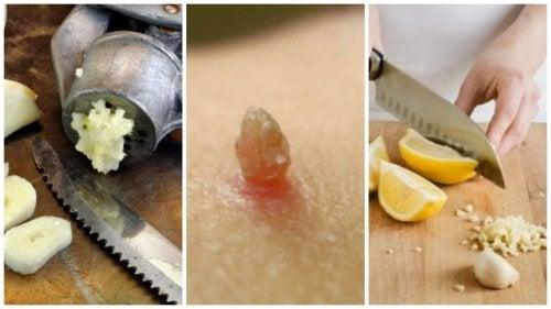Warzenentfernung mit natürlichen Heilmitteln