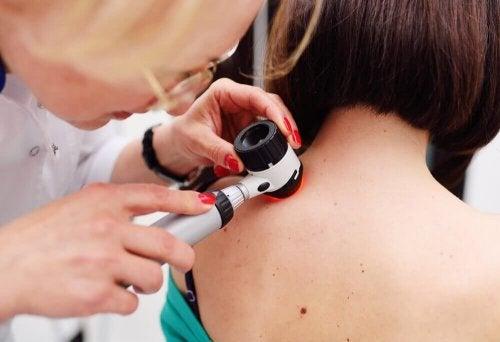 Die verschiedenen Arten von Hautkrebs erkennen