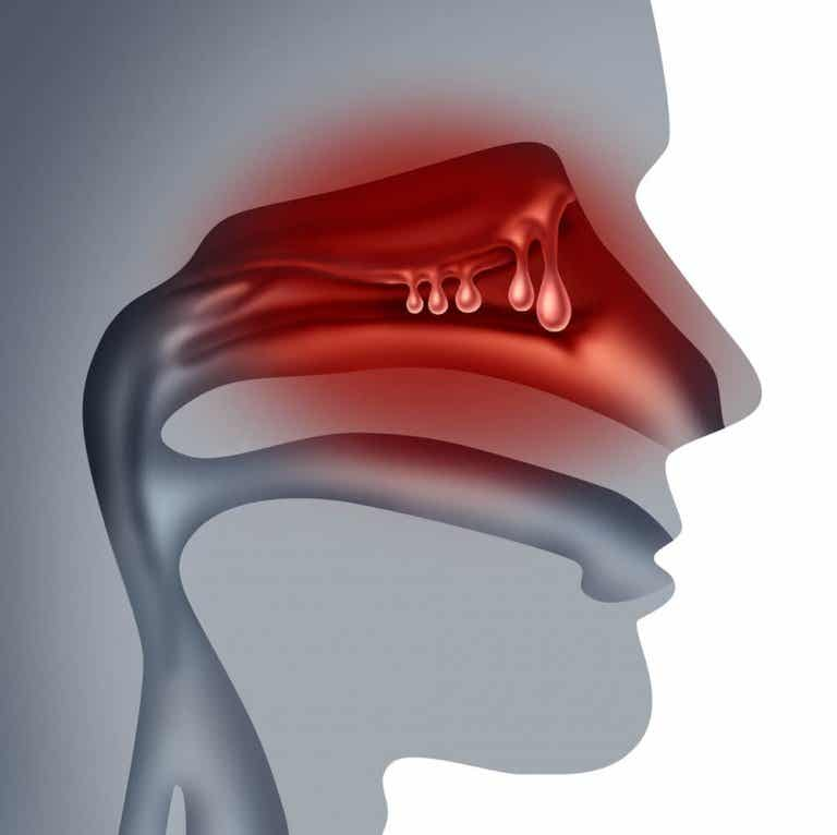 Was sind Nasenpolypen und was hilft dagegen?
