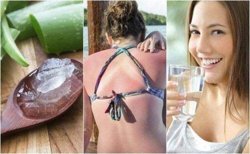 9 Möglichkeiten, einen Sonnenbrand zu behandeln