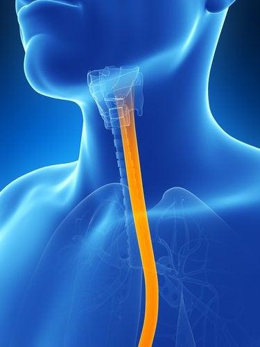 Entzündung der Speiseröhre: was tun?