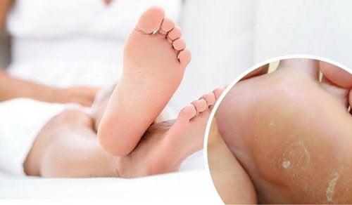 bestes Hausmittel gegen Hornhaut an den Füßen