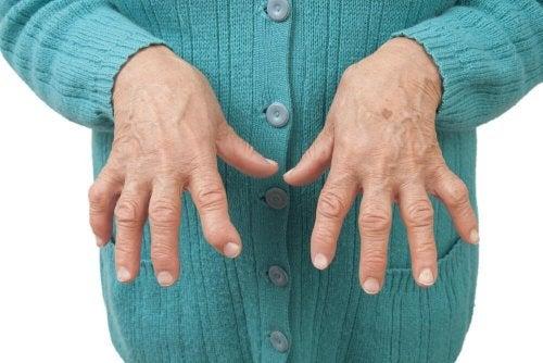 Methotrexat zur Behandlung rheumatoider Arthritis