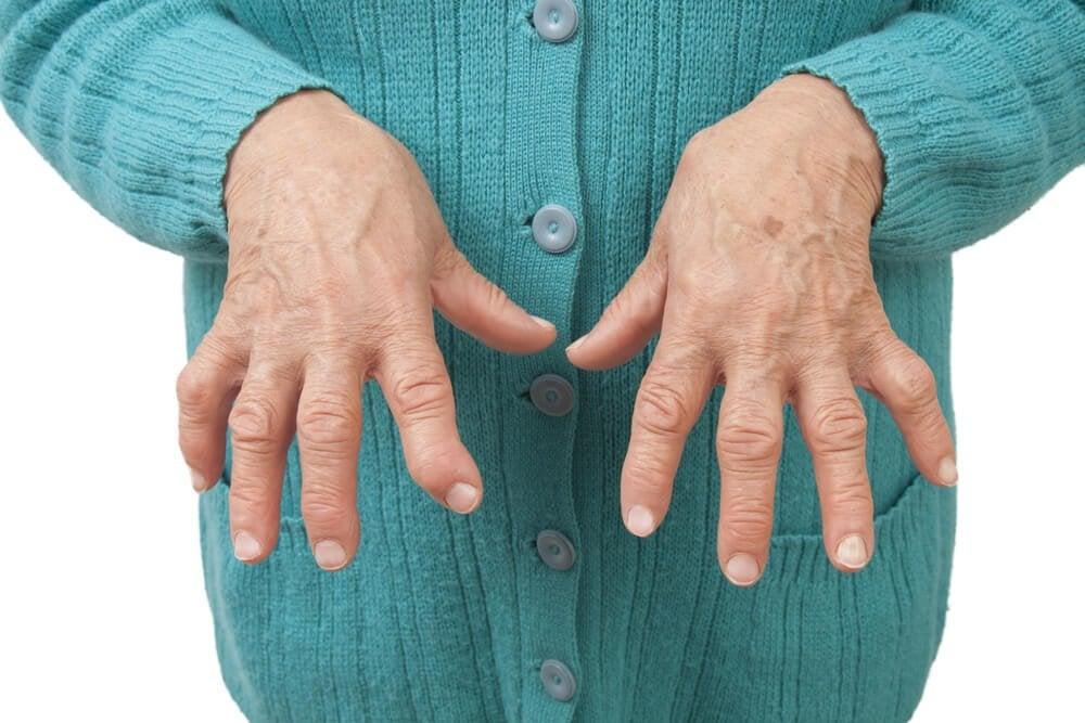 Naturheilmittel, mit denen man rheumatoide Arthritis lindern kann