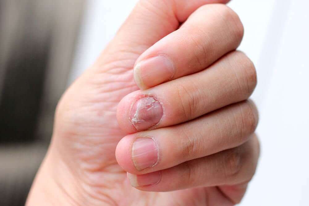 5 Naturheilmittel gegen Schuppenflechte an den Nägeln