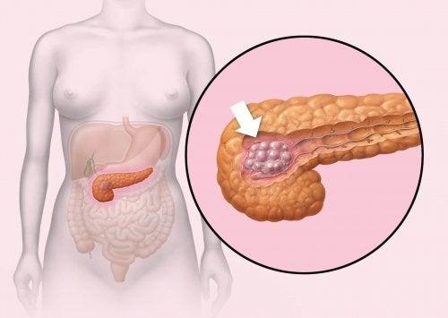 Bauchspeicheldrüsenkrebs erkennen
