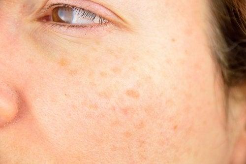 Gesicht mit Hautflecken