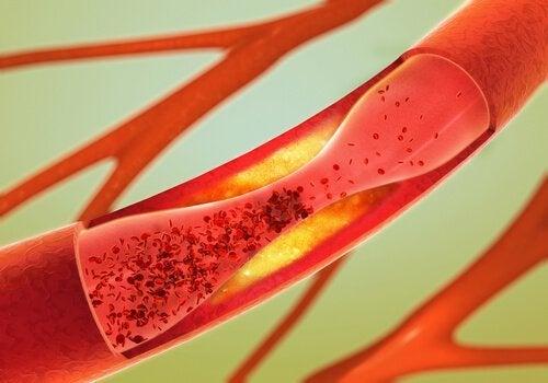 Knoblauch ist ein natürliches Mittel für gesunde Arterien