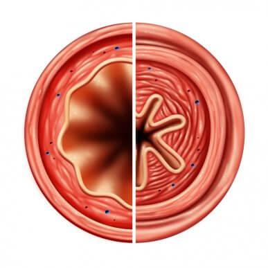 Wie wirken Antiasthmatika?