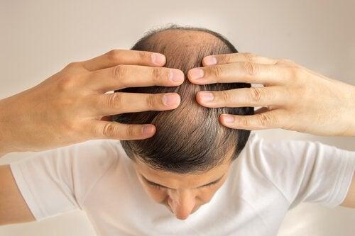 Mann mit Glatze