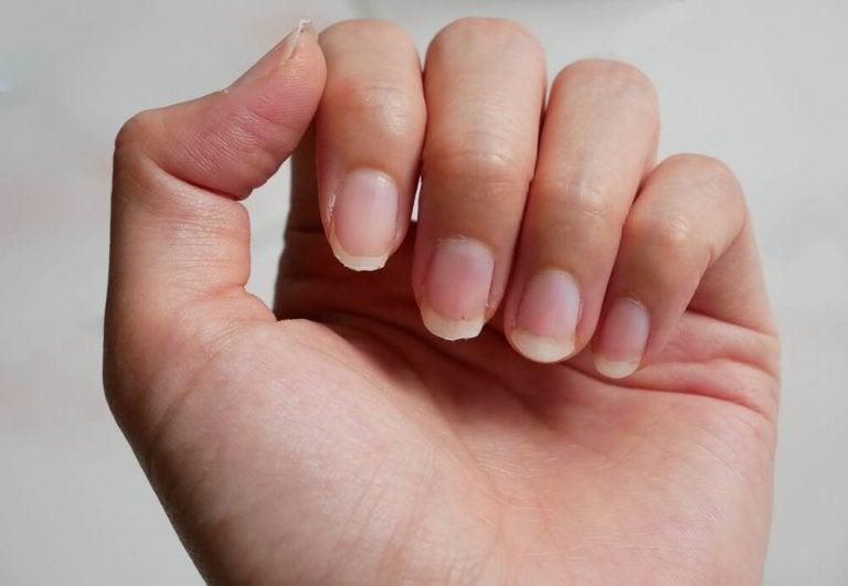 So wachsen brüchige Fingernägel gesund nach